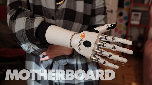 What It's Like to Live With a Bionic Hand