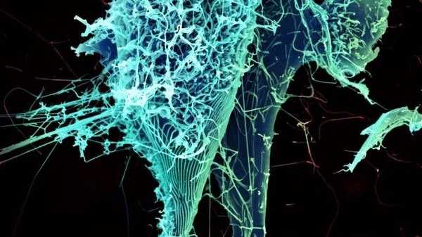 Ebola Can Hide Out and Replicate In Your Lungs