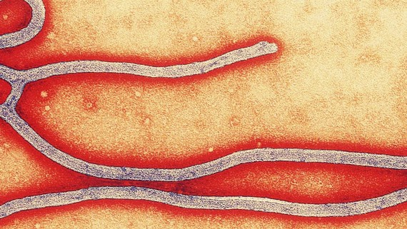 A Hospital Sent the US's First Ebola Patient Home for Two Days After He Was Sick