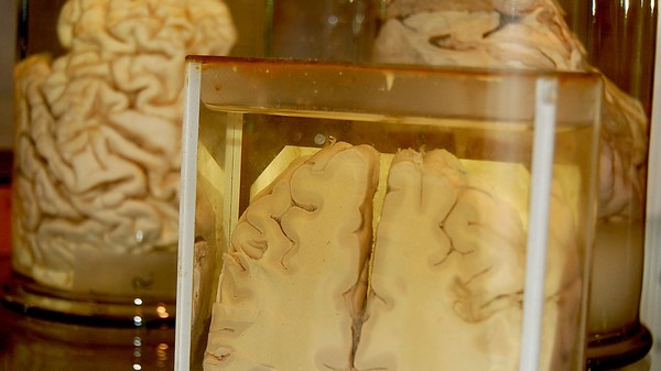 ​It's Surprisingly Easy to Lose Track of 100 Brains in Jars