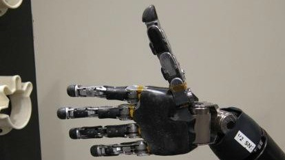 The Mind-Controlled Robotic Limb Can Now Give A Thumbs-Up