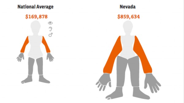 Nevada Is the Best State to Lose an Arm In, According to This App