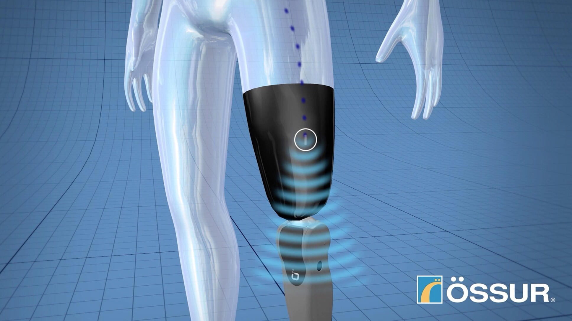 A Bionic Limb You Can Control With Your Unconscious Mind Is Here