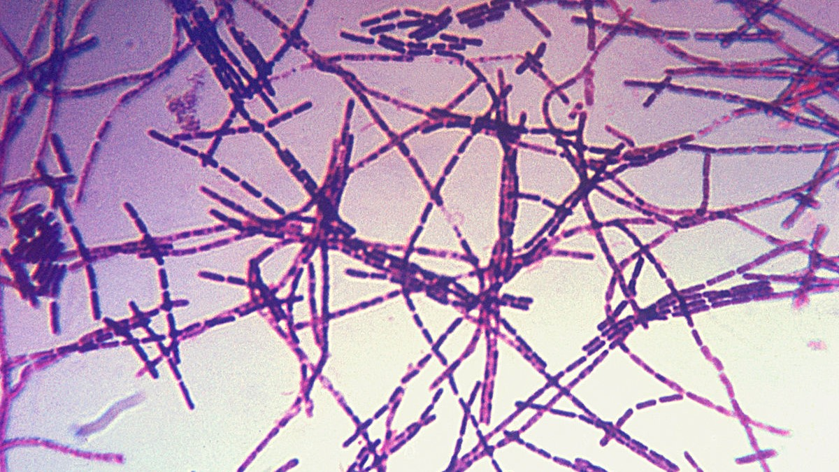 The Pentagon Accidentally FedExed Live Anthrax Samples to Labs