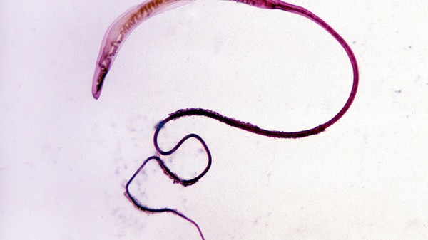 Parasites by Post: The Online Black Market for Therapeutic Worms