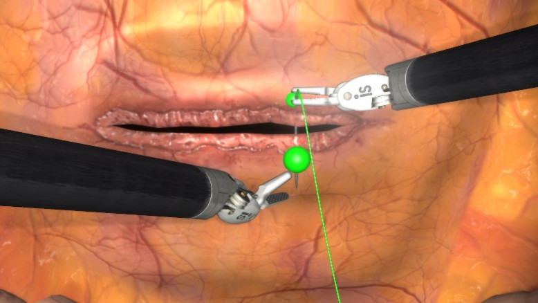 How High Speed Communications Networks Are Making Remote Surgery Realistic
