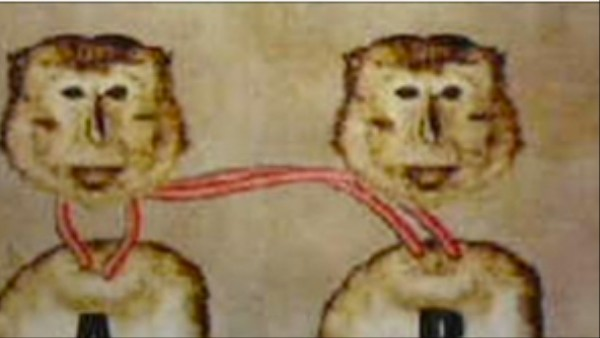 Scientist Claims to Have Transplanted a Monkey Head, But Where's the Proof?
