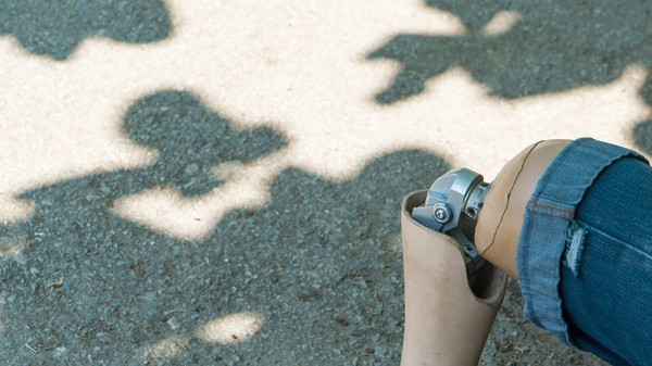 Is Harm to a Prosthetic Limb Property Damage or Personal Injury?