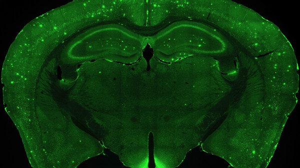 Scientists Zapped Mouse Brains with Lasers to Bring Back Lost Memories
