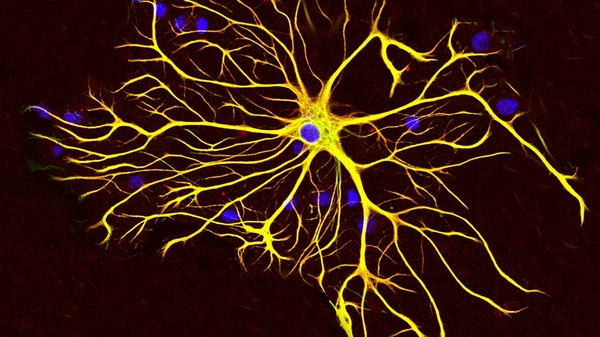Taking on Depression via Electrodes and the Brain's Secret Calcium Signals