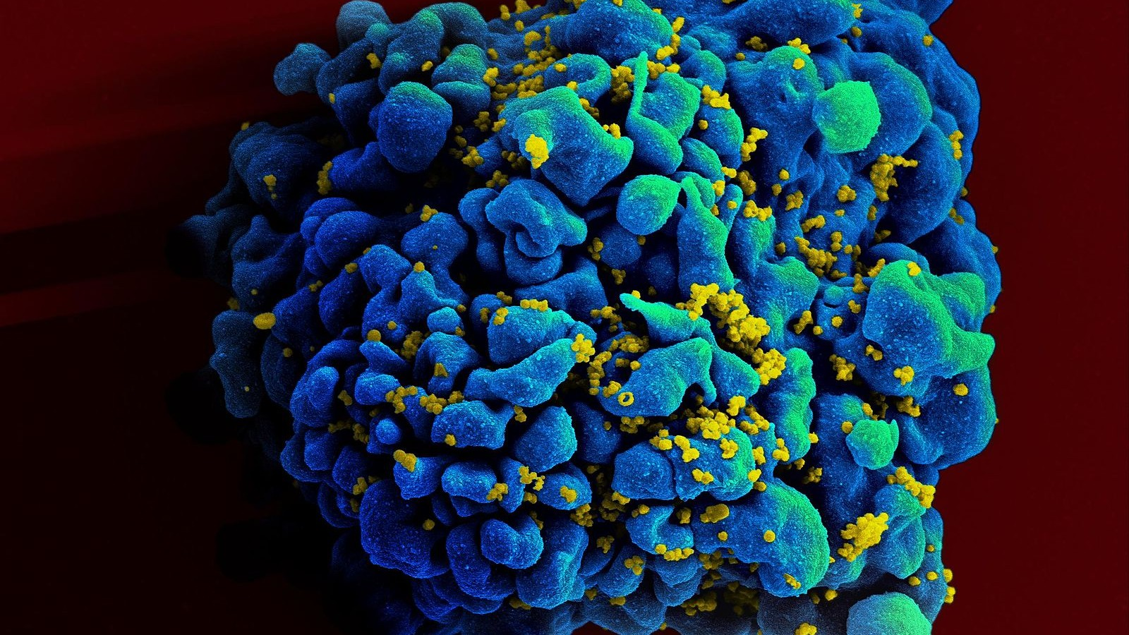 A Successful New HIV-Nuking Drug Wasn't Even Designed for HIV