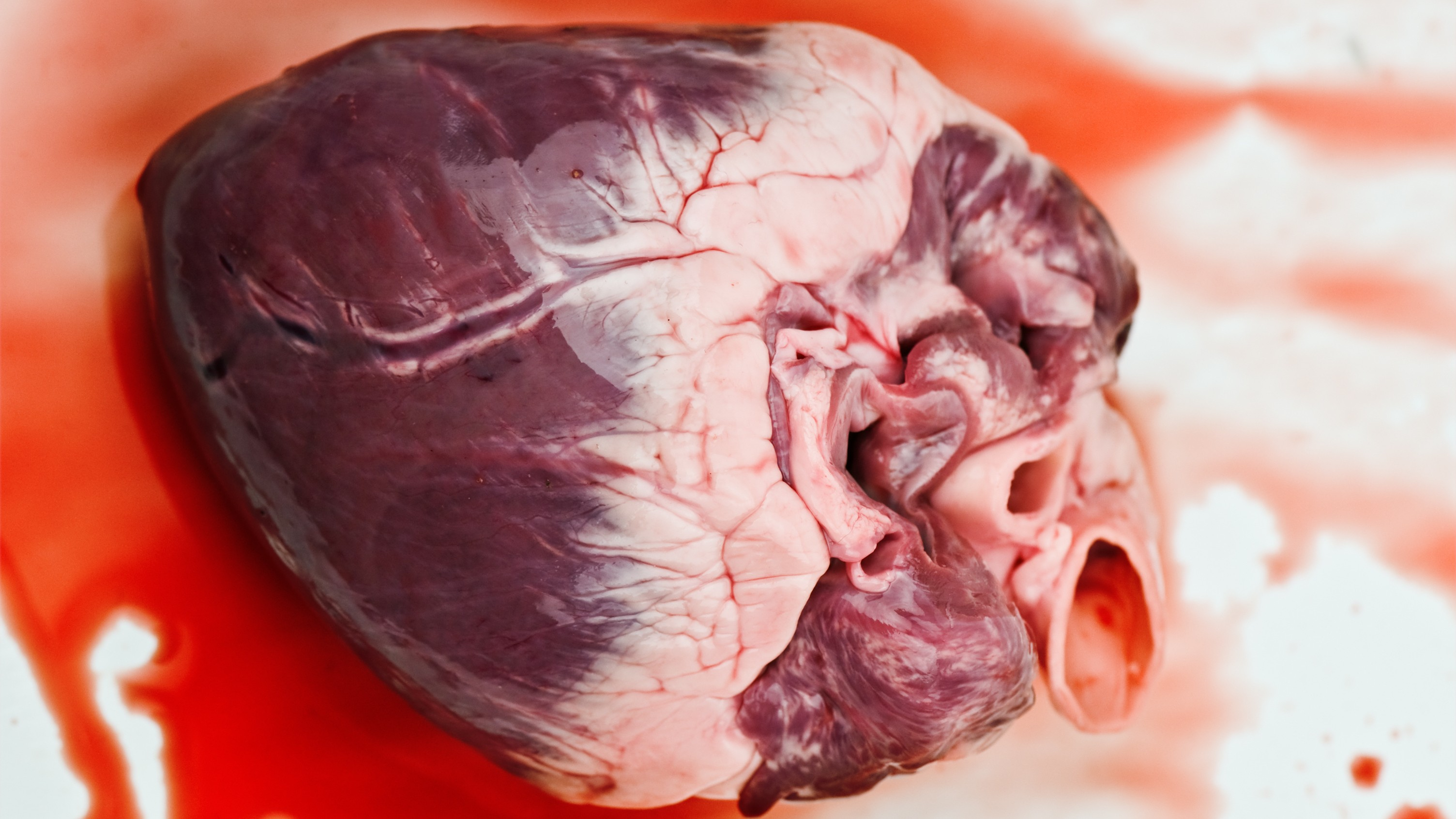 Why Heart Cancer Isn't a Thing