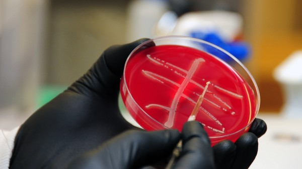 How Worried Should We Be About the 'Nightmare Bacteria' Making Headlines?