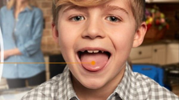 Orange-Flavored, Dissolvable Amphetamine for Children Approved by FDA