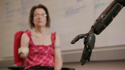 Watch This Mind-Controlled Bionic Arm Touch and Feel