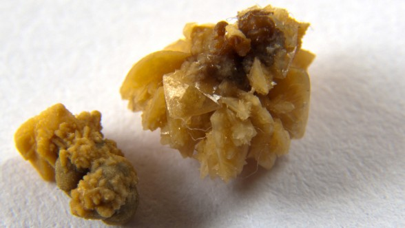 Rising Temperatures Will Loosen America's 'Kidney Stone Belt'