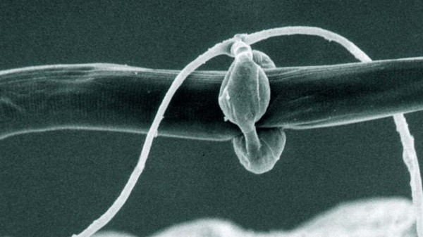 Horror: Bacteria-Controlled Fungus That Eats Worms from the Inside Out