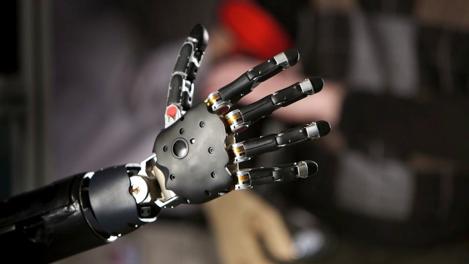 I Would Replace My Right Arm With a Robotic One