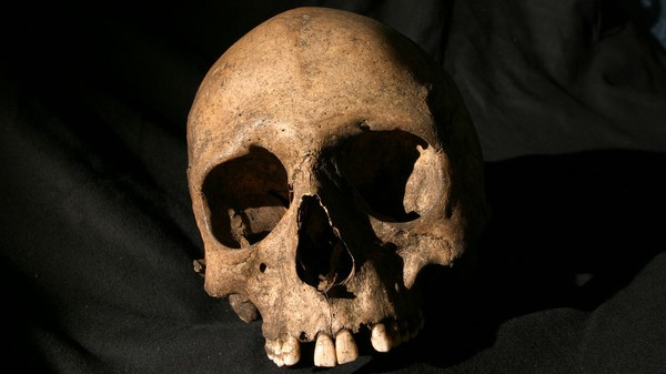 Ancient Skeletons Chronicle the Spread of Leprosy