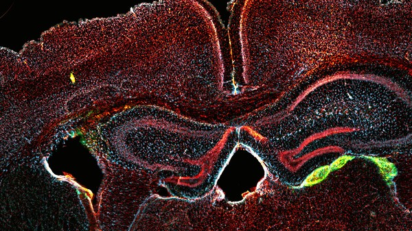 Scientists Can Now Transform Blood Cells into Neurons