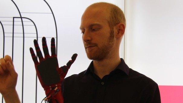 The Open Source, 3D Printed Bionic Arm Needs to Get a Lot Cheaper
