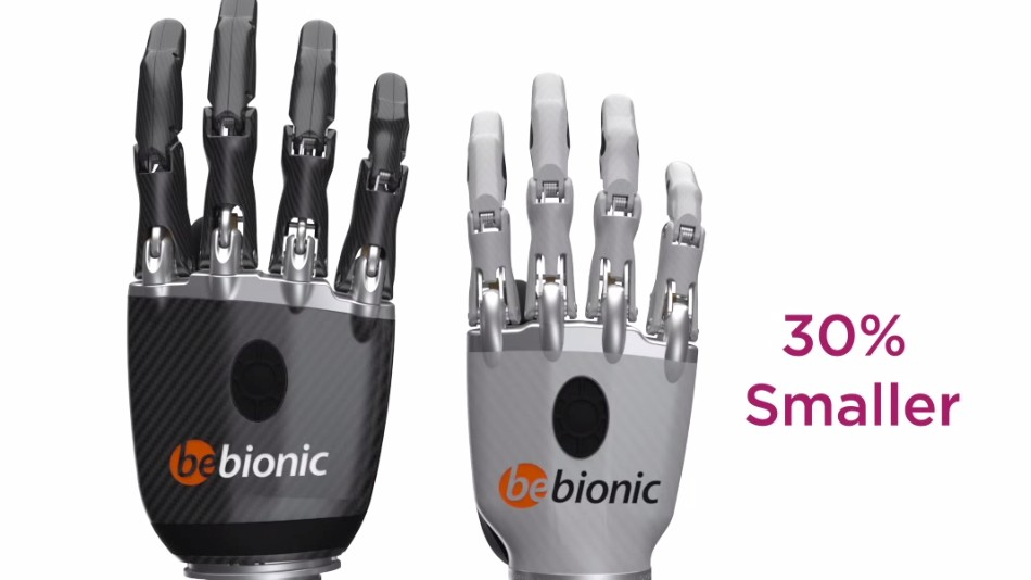 Finally, a Bionic Hand Designed for Women