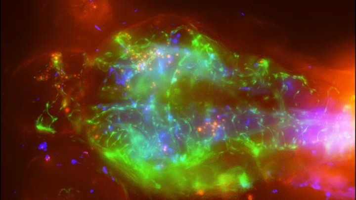 See-Through Zebrafish Offer a Window Into the Chilling Creep of Meningitis