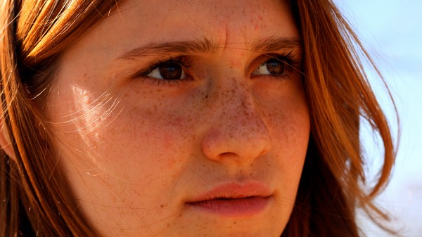 We Still Don't Know Why Some People Get Freckles