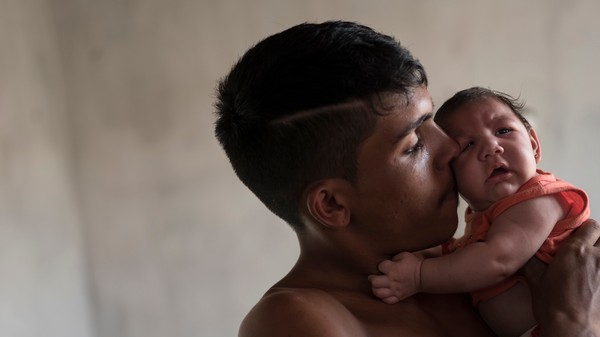 Zika Definitely, Without a Doubt Causes Microcephaly