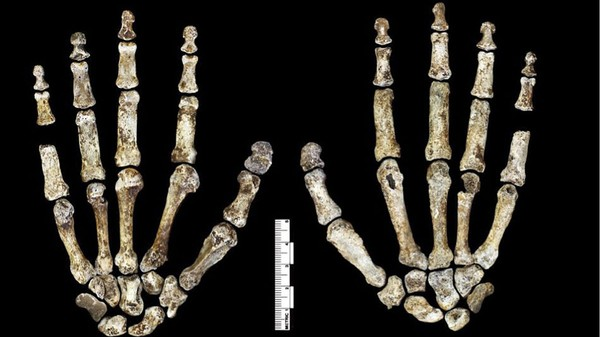 Lucy, Our Early Human Ancestor, Died a Sad and Sudden Death