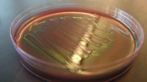 Good News: There's a Plan to Save Us From Antibiotic Resistant Superbugs