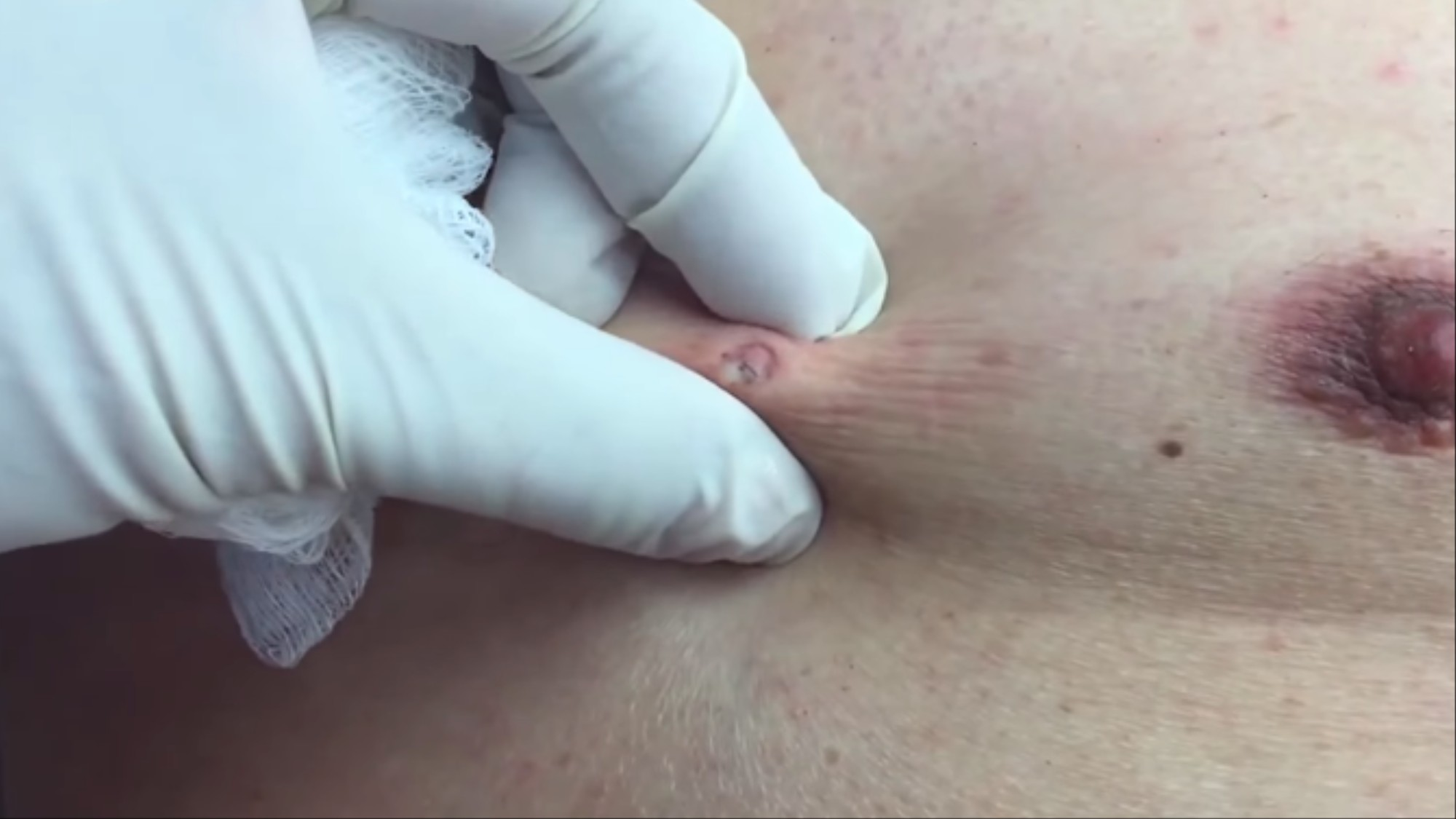 This YouTube Dermatologist Is the Hero of Pimple Popping