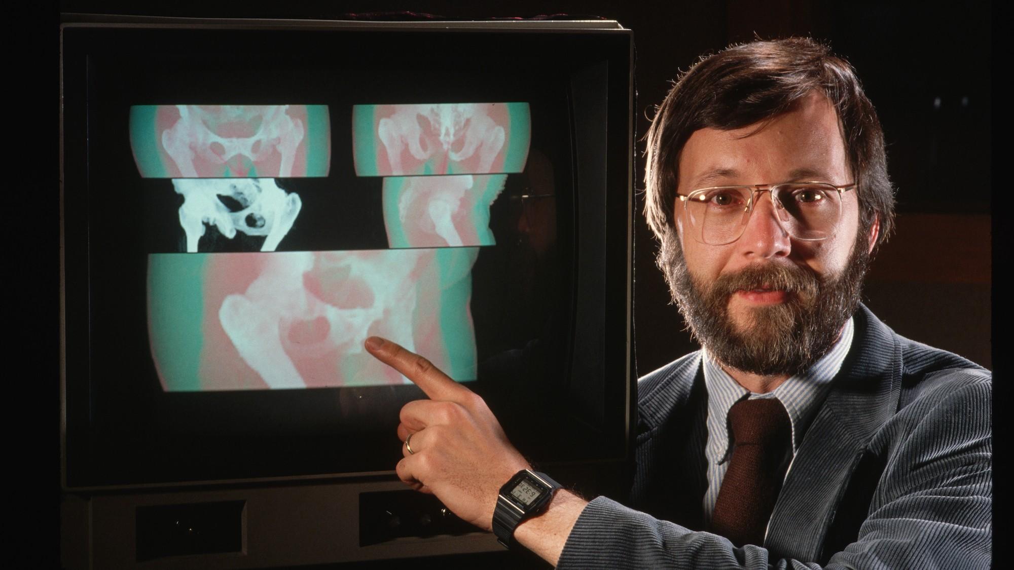 Pixar's 1986 Imaging Computer Was So Advanced, It Changed Medicine